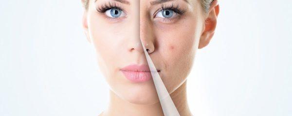 Usa nuestra cosmética propia pata el tratamiento acné y piel grasa