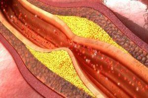 Portada enfermedades cardiovasculares