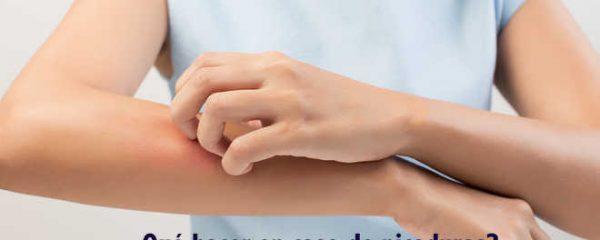 Consejos para saber qué hacer en caso de picaduras más frecuentes. Aprende a diferenciarlas.