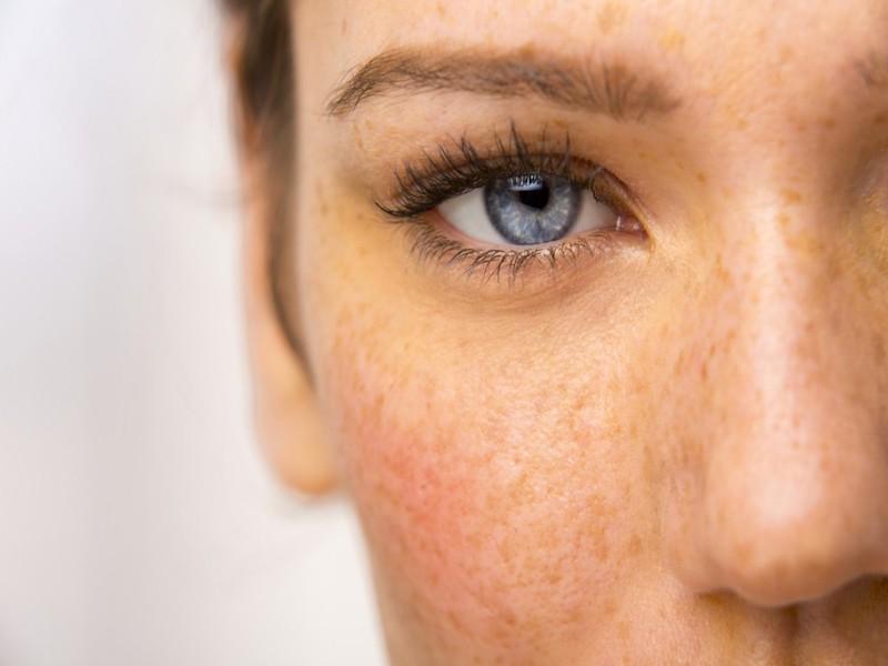 Rutina antimanchas o despigmentante   cosmética natural